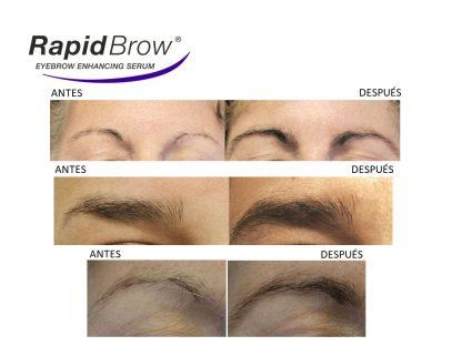 Antes y después Rapid Brow